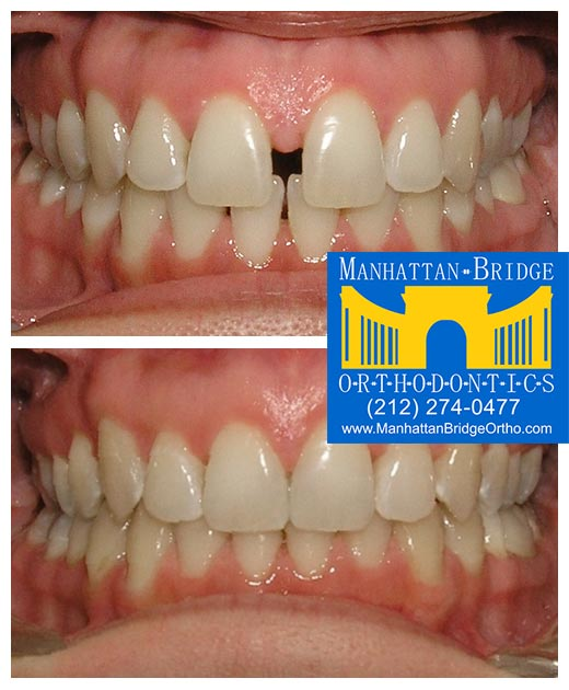 Before and after spacing cases treated at Manhattan Bridge Orthodontics