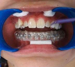 Manhattan Bridge Orthodontics Invisalign 2019 Diamond
