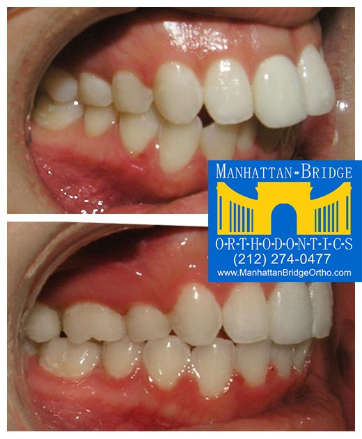 Before and after overjet cases treated at Manhattan Bridge Orthodontics