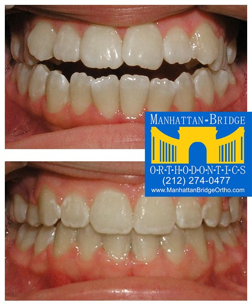 Before and after openbite cases treated at Manhattan Bridge Orthodontics