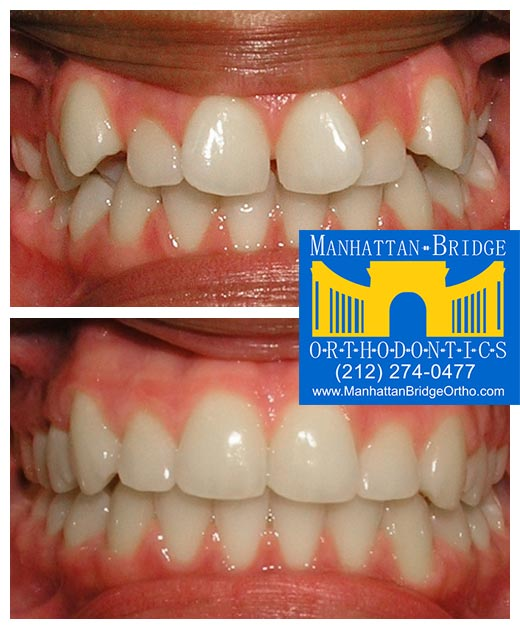 Before and after crowding cases treated at Manhattan Bridge Orthodontics