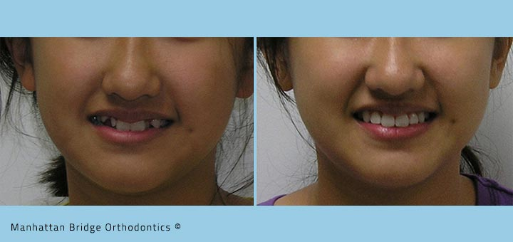 Patient A (Non-Extraction) – Before and After