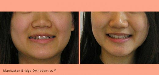 Braces Without Extractions Braces Teeth Extraction vs