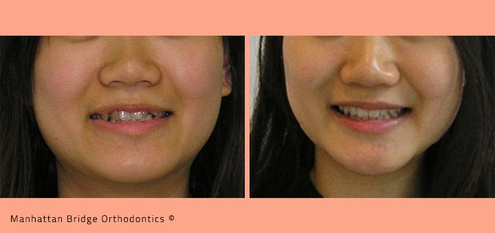Patient B (4 Bicuspid Extractions) – Before and After