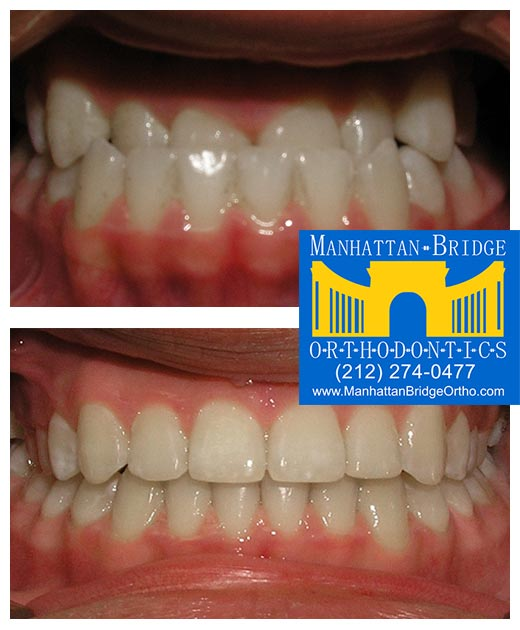 Before and after underbite cases treated at Manhattan Bridge Orthodontics