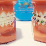 Braces treatment process at Manhattan Bridge Orthodontics