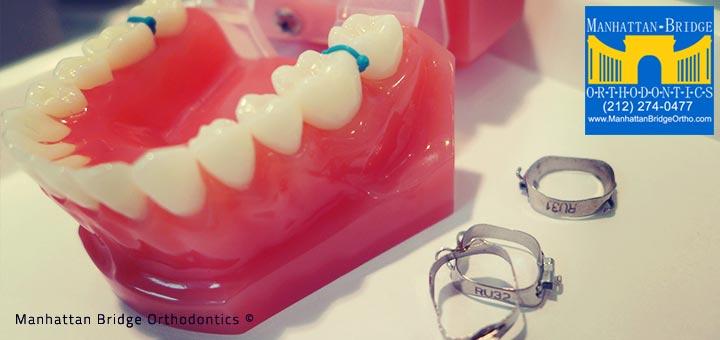 Spaces and molar bands for braces at Manhattan Bridge Orthodontics