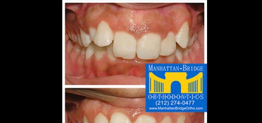 Before and after deepbite cases treated at Manhattan Bridge Orthodontics