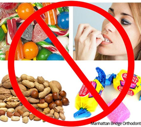 Foods to avoid while in braces