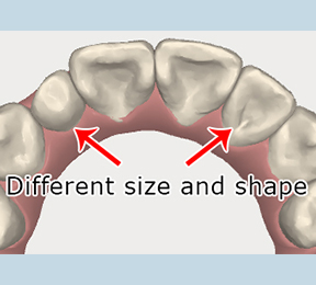 How size and shape of teeth can affect orthodontic treatment