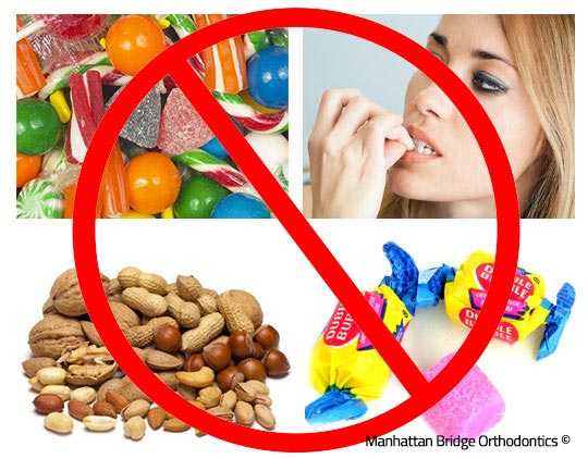 Foods and habits to avoid while in braces