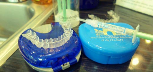 Teeth whitening with Invisalign