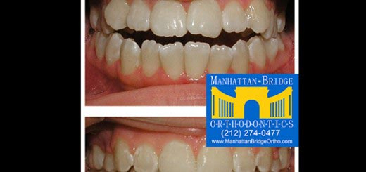 Before and after open bite cases treated at Manhattan Bridge Orthodontics